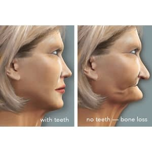 Bone Loss after extraction