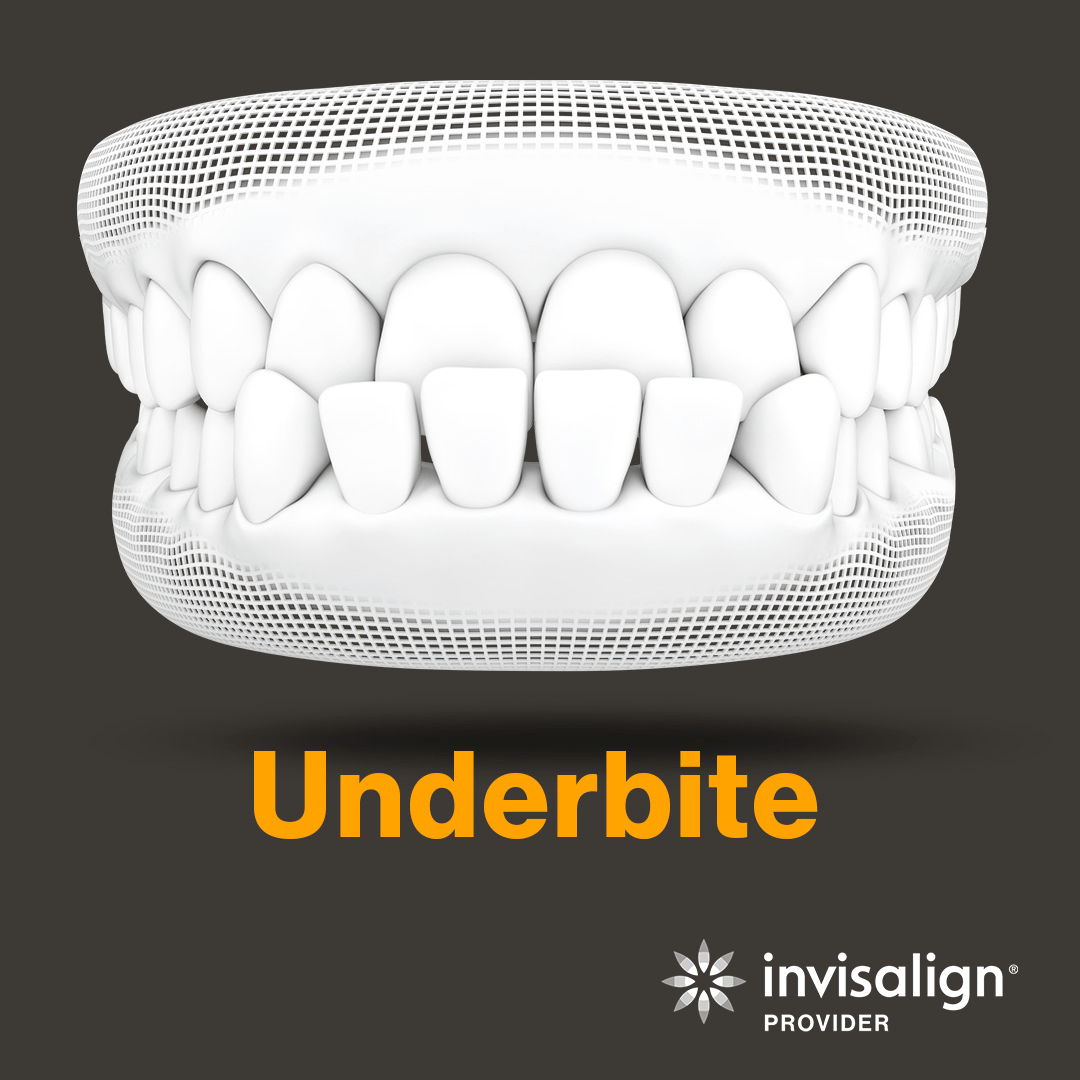 An image from Invisalign displaying a model example of an underbite.