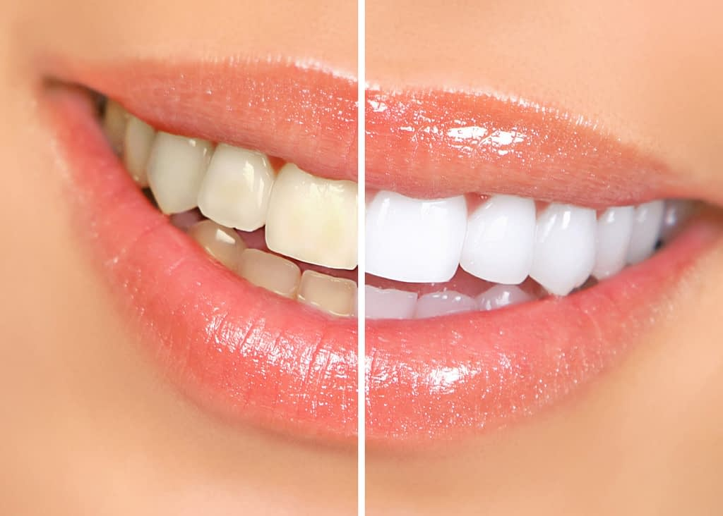 To display the difference between stained and whitened teeth.