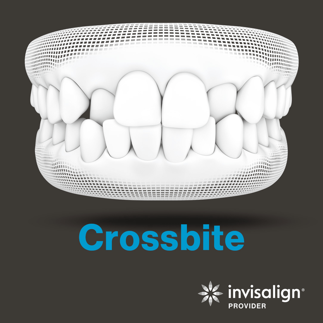 An image from Invisalign displaying a model of a crossbite