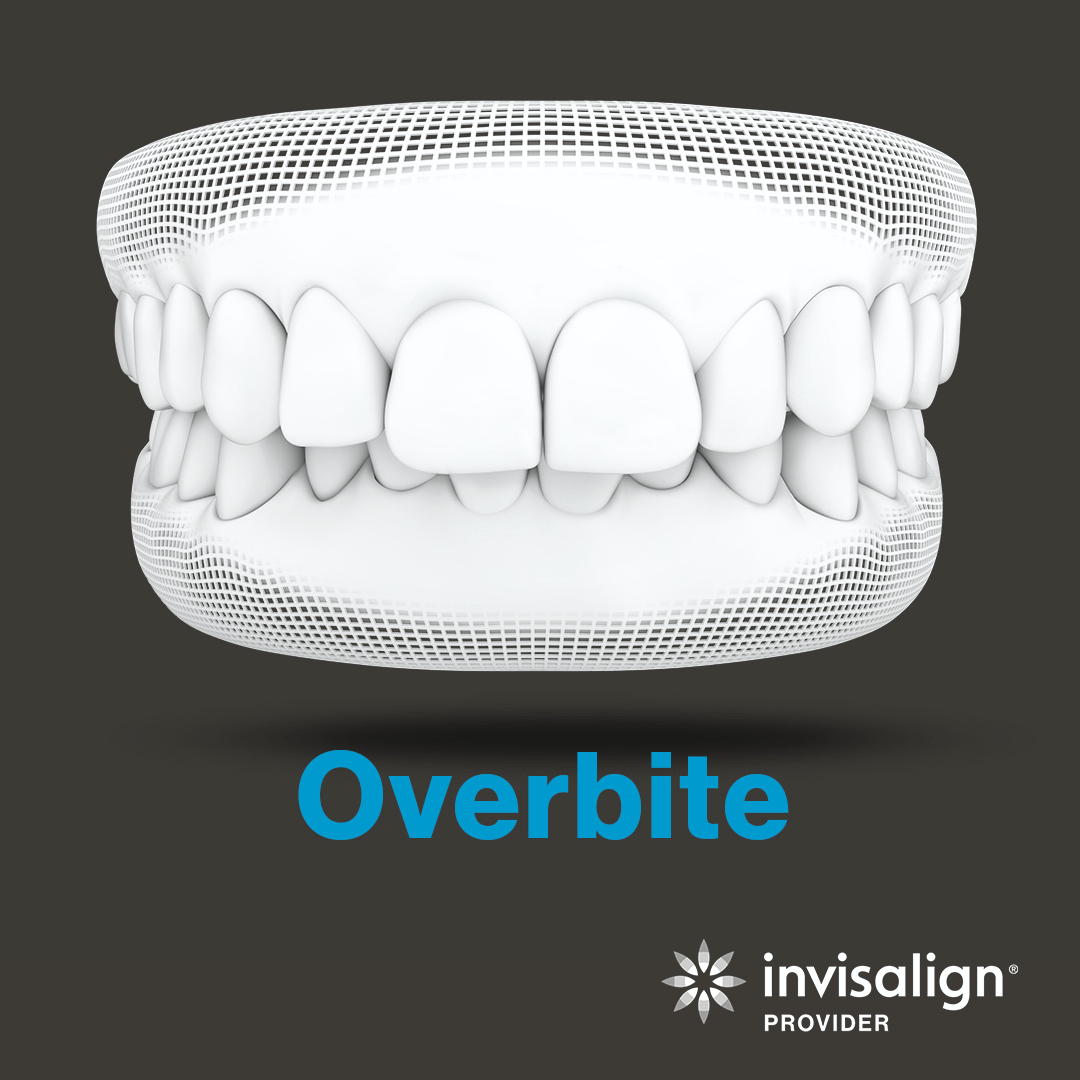 An image from Invisalign displaying a model example of an overbite.
