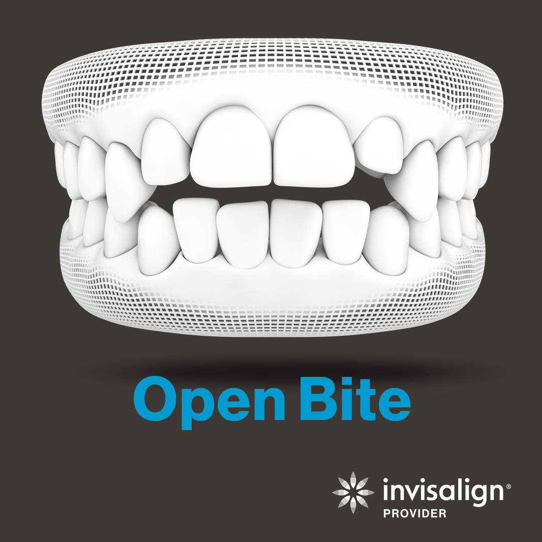 An image from Invisalign displaying a model example of an open bite.