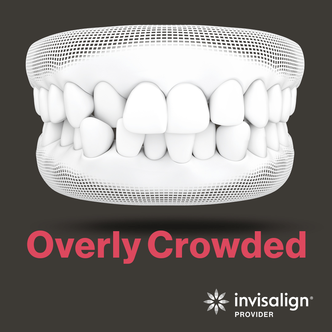An image from Invisalign displaying a model example of overly crowded teeth.