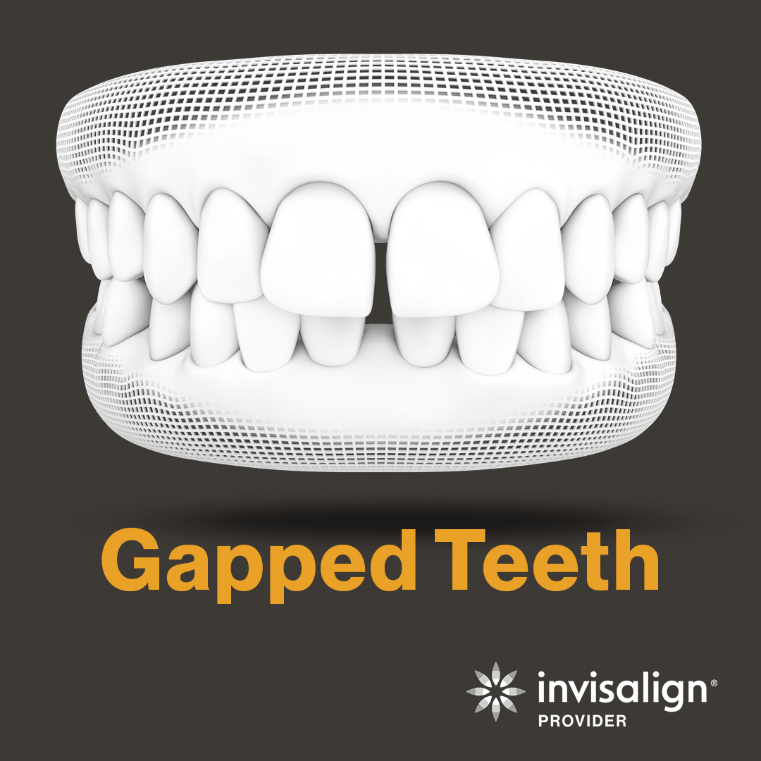 An image from Invisalign displaying a model example of gapped teeth.