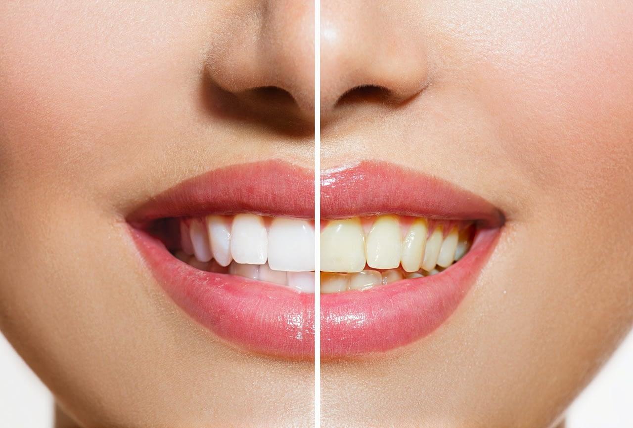 teeth whitening london ontario
